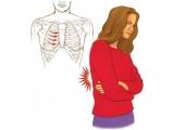 Интеркосталната невралгия – Пробождащият знак за някои големи проблеми ще ви извади за дни от залата